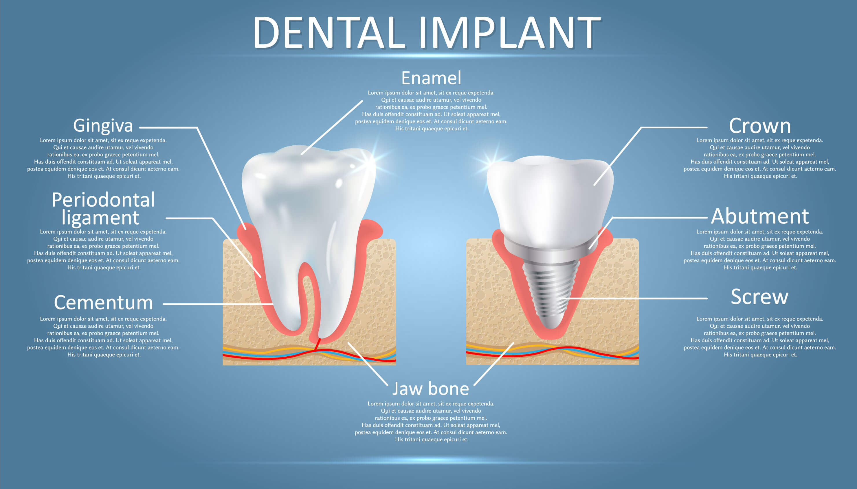 healthy tooth and dental implant side by side