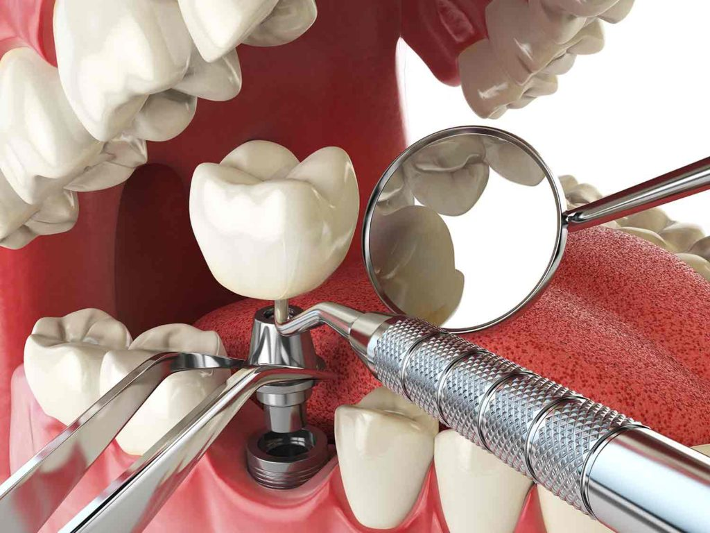 Dental implant with dental tools showing placement