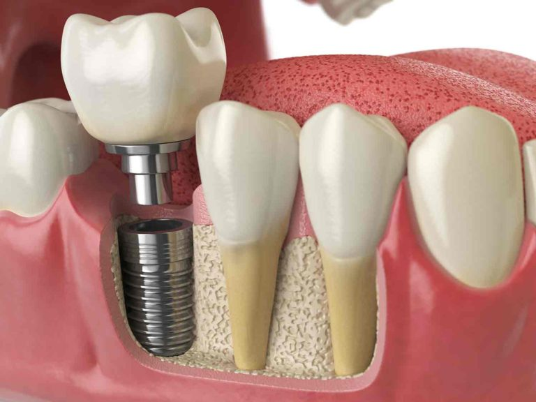 Dental implant unscrewed explanation