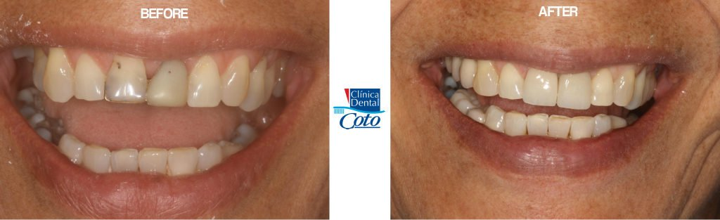 before and after dental implant procedure woman