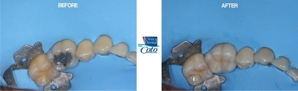 before and after dental cavaties procedure