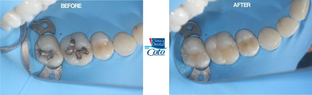 before and after dental fill-ins procedure