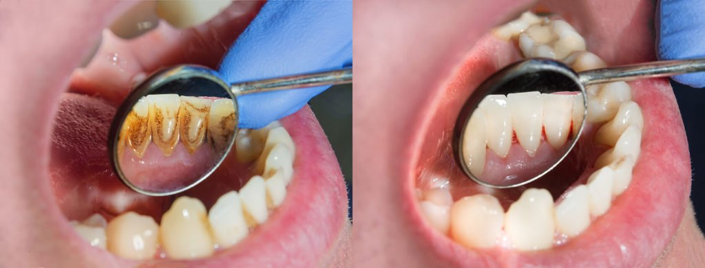 Dental Procedure before and after