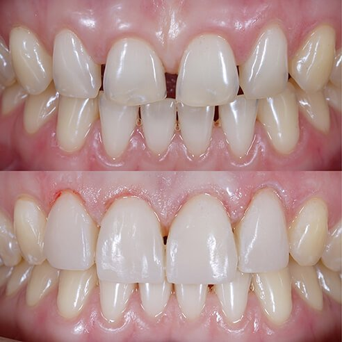 before and after dental procedure close up