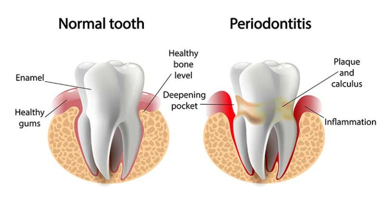Normal Tooth vs periodontitis side by side graphic