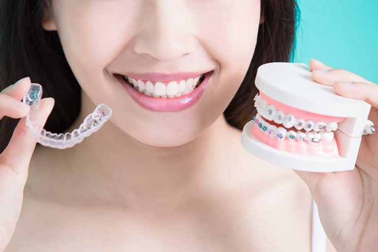 Invisalign side by sign with a mold