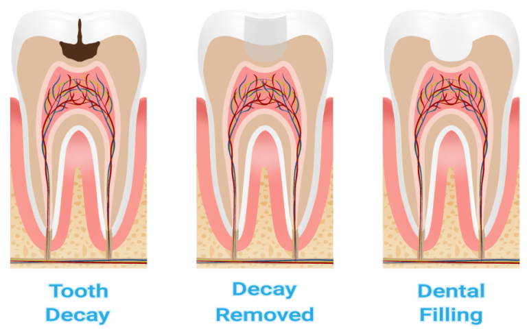 3 stages of dental tooth decay, decay removed, dental fillings