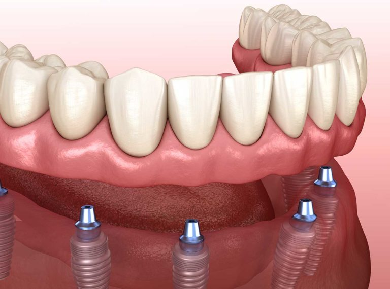 DentalCoto_CostaRica dental implants 3D