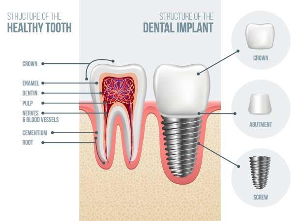 Dental Implants structure diagram