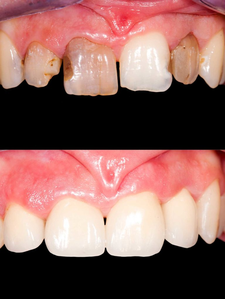 before and after full mouth restore