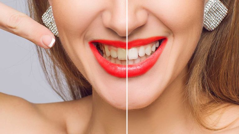 lady full mouth restore before and after