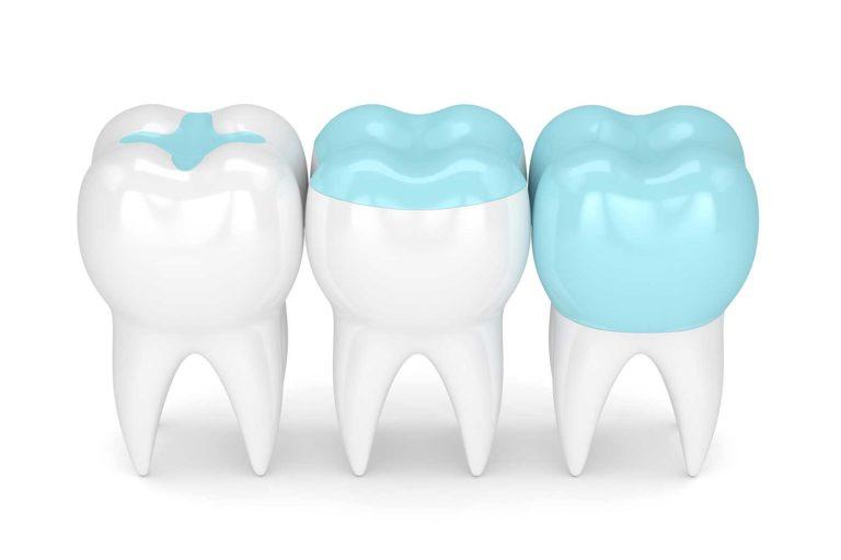 3 different dental procedures in 3D