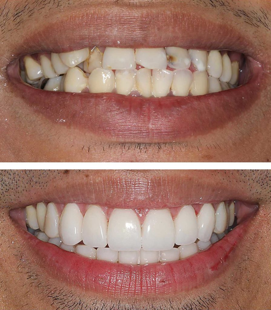 Man before and after Porcelain Veneers great turnout