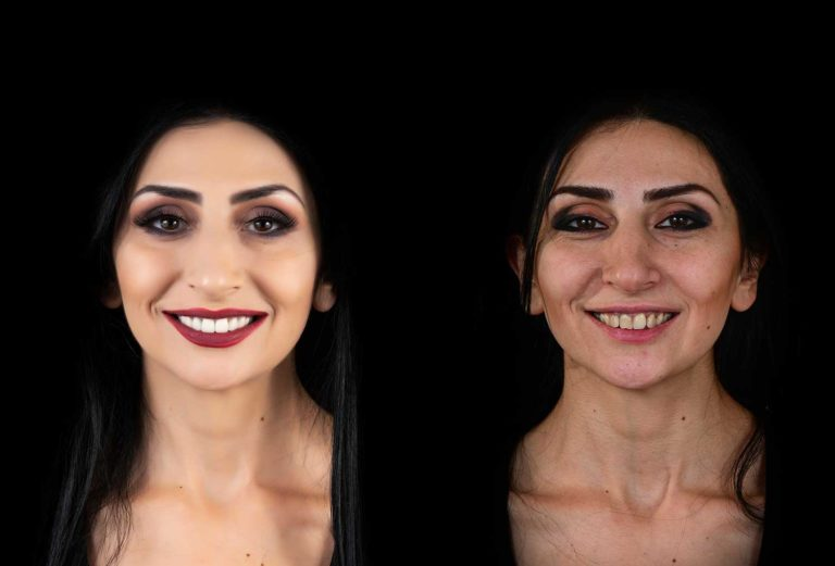 Woman before and after Porcelain Veneers