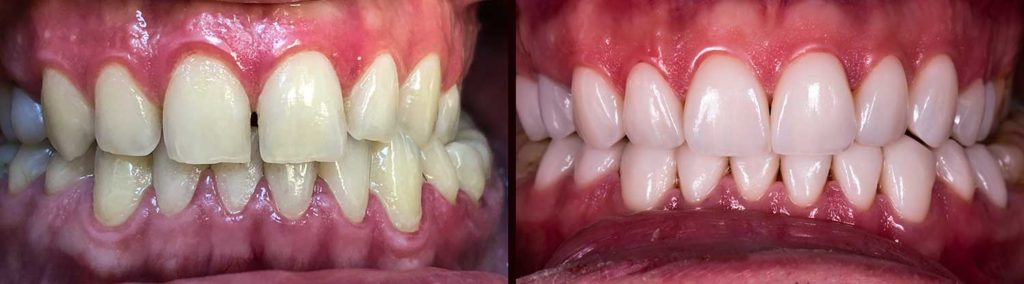 Man before and after Porcelain Veneers and whiten