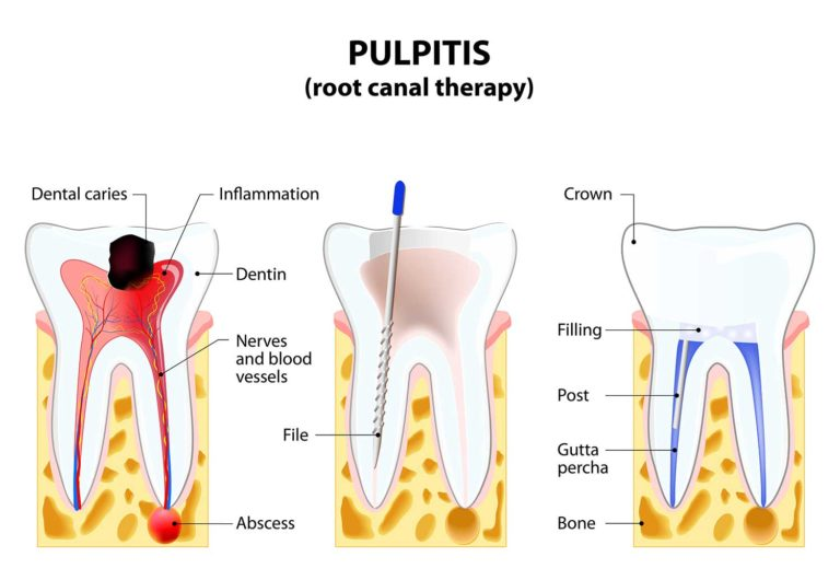 Pulpitis Illustration of Root Canal Therapy