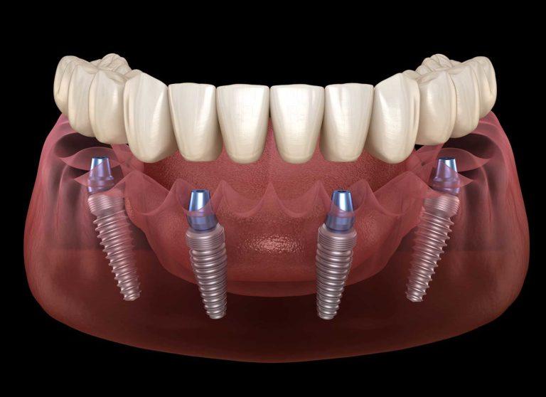 Dental Implants All On 4 in cartago costa rica