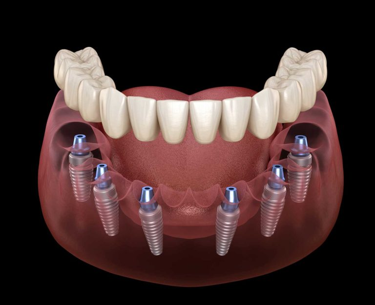 Dental Implants All On 6 Dental Coto in Costa Rica