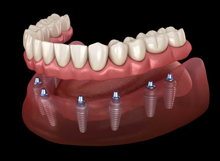 Dental Implants All On 8 by Dental Coto